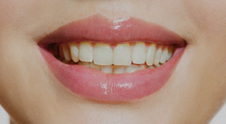 Yellow Teeth on smiling woman