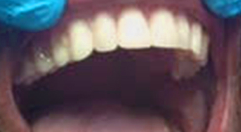 White Teeth on smiling woman